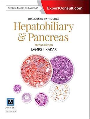 Bog, hardback Diagnostic Pathology af Laura Webb Lamps
