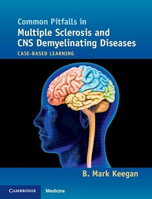 Common Pitfalls in Multiple Sclerosis and CNS Demyelinating Diseases af B. Mark Keegan