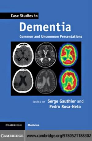 Case Studies in Dementia af Gauthier