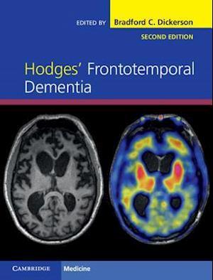 Hodges' Frontotemporal Dementia