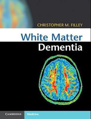 White Matter Dementia af Christopher M. Filley