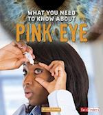 What You Need to Know about Pink Eye (Focus on Health)
