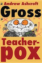 Gross Teacherpox B/W af Andrew Ashcroft