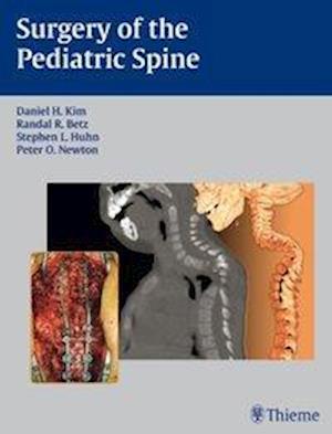 Surgery of the Pediatric Spine af D. H. Kim, Daniel H. Kim