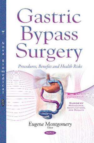 Bog, paperback Gastric Bypass Surgery af Eugene Montgomery