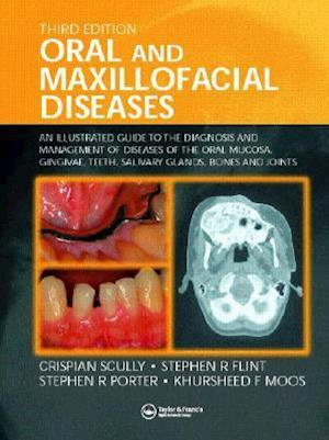 Oral and Maxillofacial Diseases af Crispian Scully, Stephen R. Flint, Stephen R. Porter