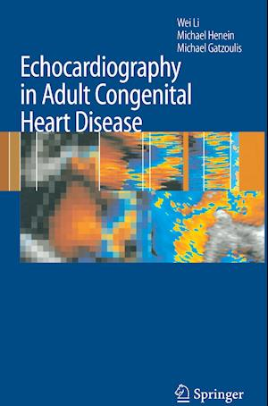 Echocardiography in Adult Congenital Heart Disease af Wei Li
