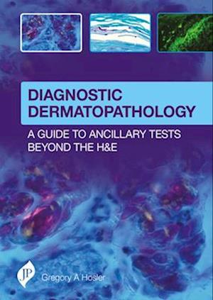 Bog, hardback Diagnostic Dermatopathology: A Guide to Ancillary Tests Beyond the H&E af Gregory A. Hosler