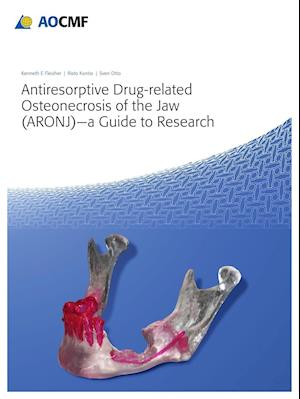 Bog, hardback Antiresorptive Drug-Related Osteonecrosis of the Jaw (Aronj) - A Guide to Research af Kenneth Fleisher