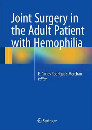 Joint Surgery in the Adult Patient with Hemophilia af E. Carlos Rodriguez-Merchan
