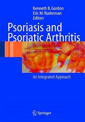 Bog, hardback Psoriasis and Psoriatic Arthritis af Kenneth B. Gordon