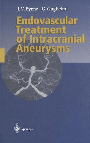 Endovascular Treatment of Intracranial Aneurysms af James Byrne