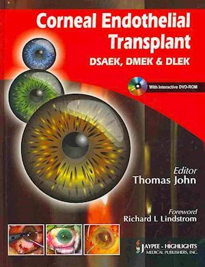 Corneal Endothelial Transplant DSEAK, DMEK and DLEK af John Thomas, Richard L Lindstrom, Thomas John