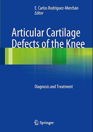 Articular Cartilage Defects of the Knee af E. Carlos Rodriguez-Merchan
