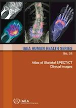 Atlas of Skeletal Spect/CT Clinical Images