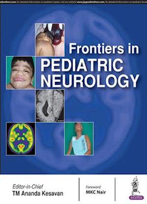 Bog, paperback Frontiers in Pediatric Neurology af TM Ananda Kesavan